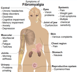hSymptoms of fibromyalgia